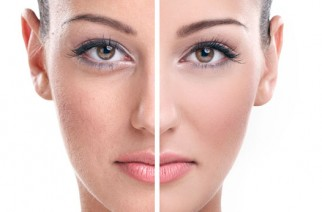 Face skin discolourations. How to deal with them?